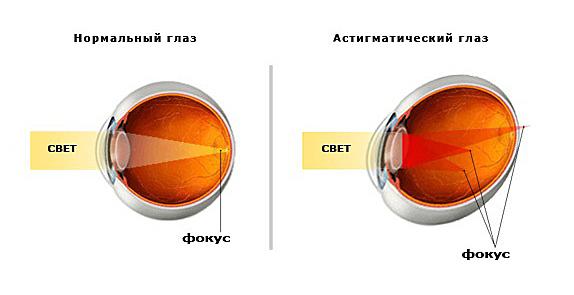 Можно делать гимнастику для глаз при макулодистрофии