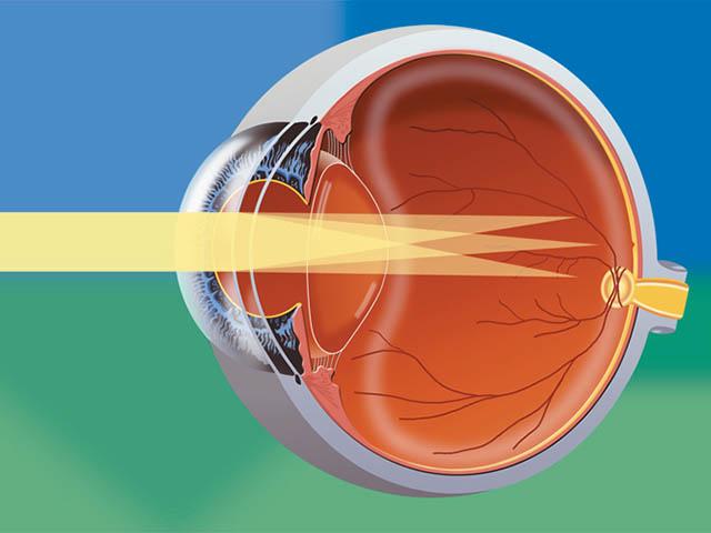 Как пользоваться очками тренажерами при близорукости