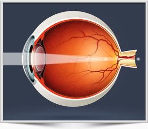 Как нормализовать глазное давление быстро