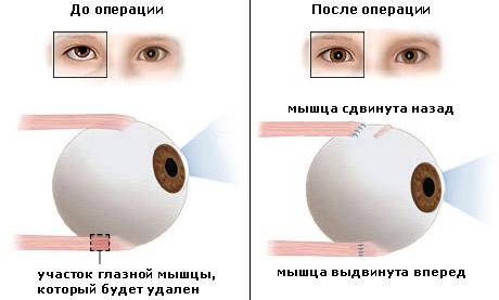 Восстановить потерянное зрение