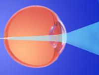 Улучшить зрение календулой